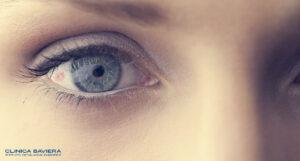 Perché a volte appaiono piccole macchie rosse negli occhi?