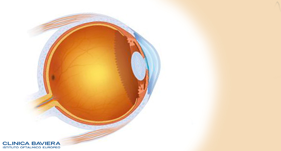 Eviscerazione occhio