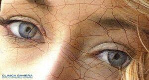 Strabismo di Venere: che cos'è?