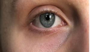 CyPass Micro-stent la tecnica mini invasiva per trattare il glaucoma