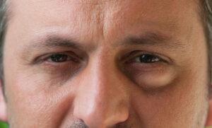 Edema palpebrale: che cos'è e perché si gonfia la palpebra?