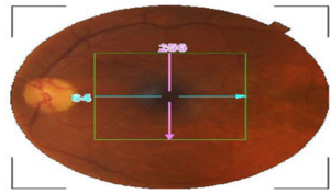 Nervo ottico: struttura e funzionamento