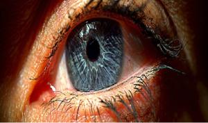 Uveite: sintomi, cause e cura