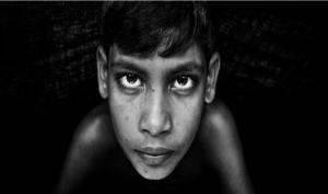 Pterigio occhio e opacità corneale