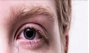 Occhi che lacrimano: perché mi piange l'occhio?