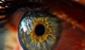 Leucoma Corneale: spieghiamo le cause e il suo trattamento