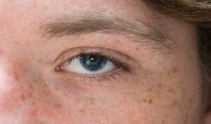 Escrescenza carnosa negli occhi: cos'è, perché appare e come si può trattare