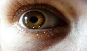Nevo oculare: può essere grave?