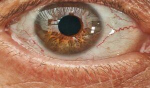 Cheratite oculare o ulcera corneale nell'occhio?