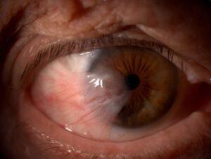 Pterigio occhio e opacità corneale: cos'è?