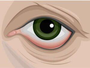 Ectropion palpebrale: che cos'è e come appare?