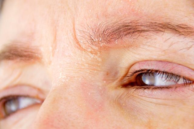 dermatite palpebrale