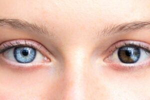 Eterocromia oculare o iridea: quanti tipi esistono?