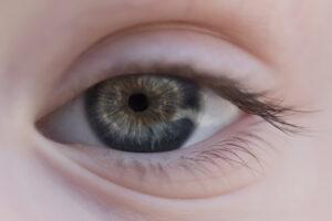 Gerontoxon o arco senile, cos'è e quali conseguenze ha sulla vista?